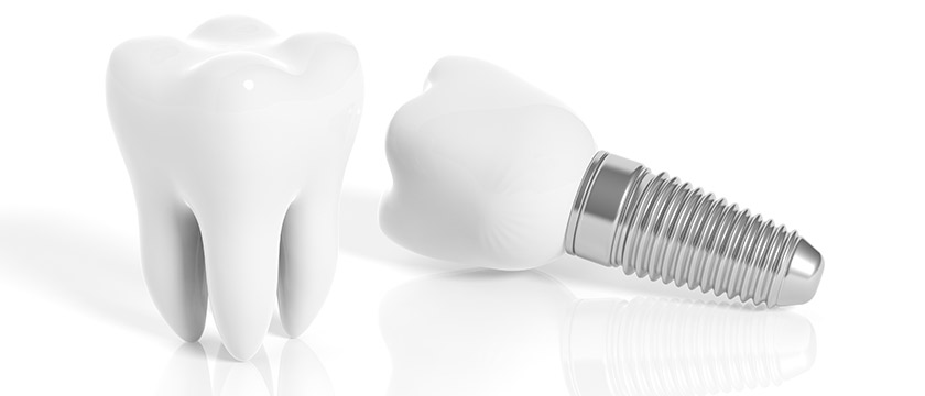 Dental Implants Overseas – Are They All They're Cracked Up To Be?